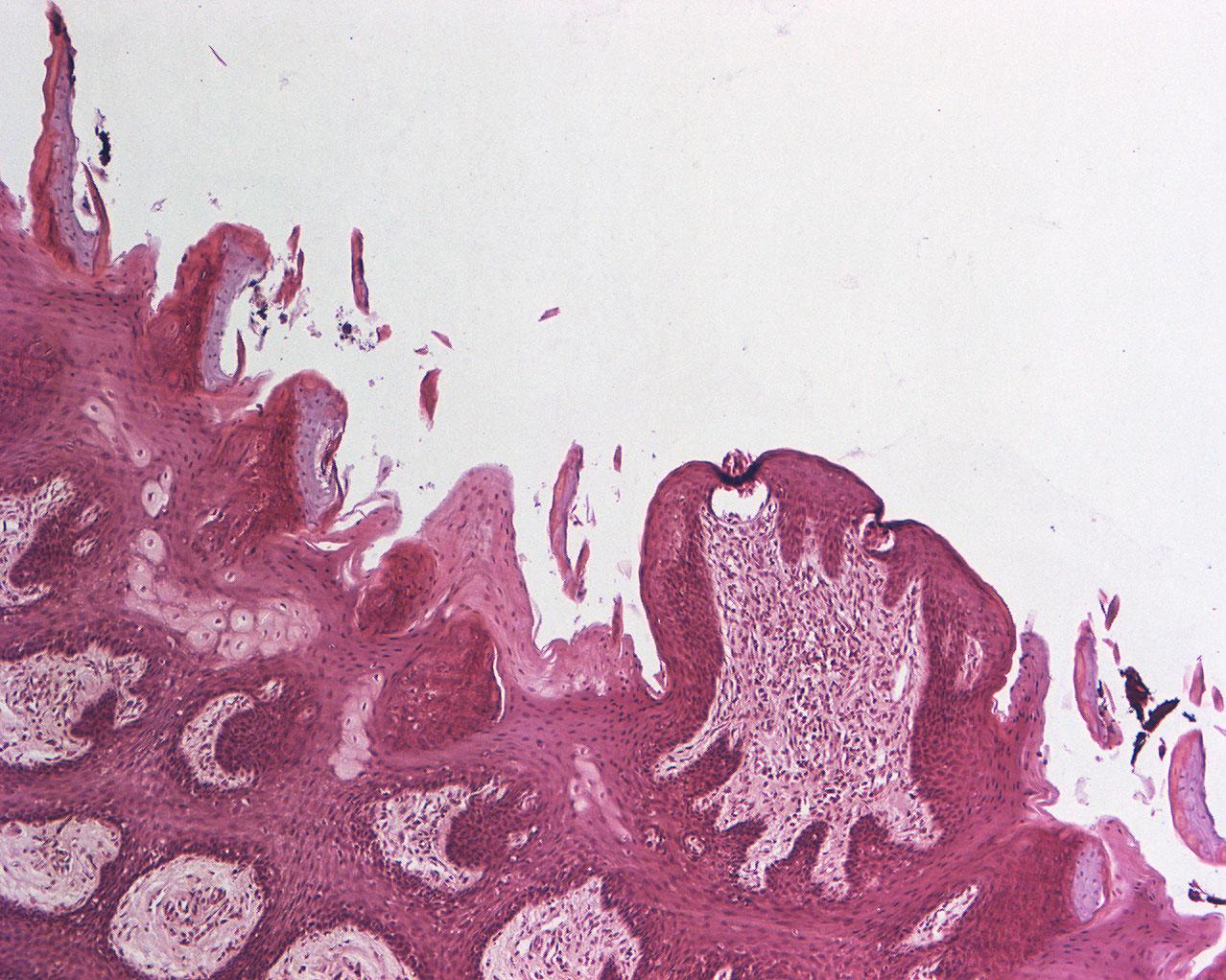 Filiform And Fungiform Papillae Of The Tongue 100 X Anatomicum